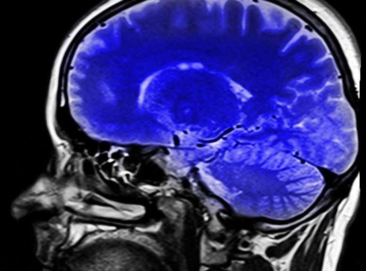 image 20160912 19243 atfeoo.jpg?ixlib=rb 1.1 - Six règles pour régénérer son cerveau