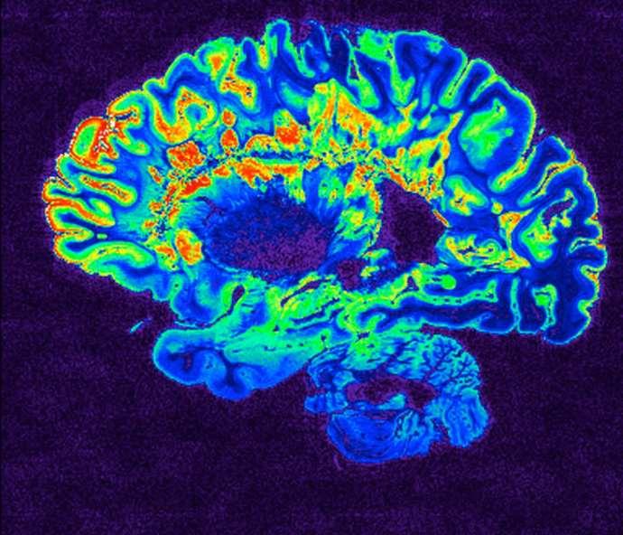 Coronavirus and the brain effect