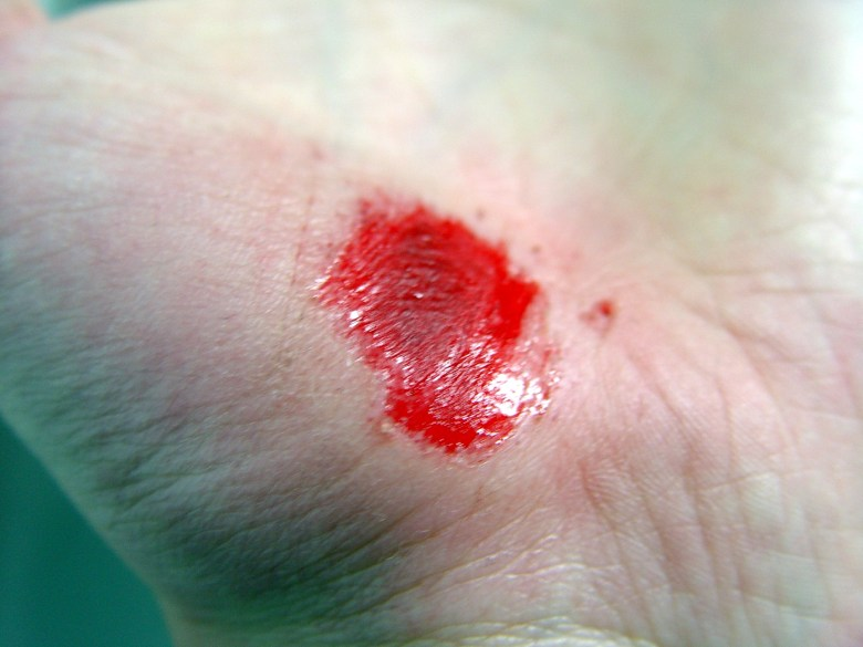 A fresh scrape on a palm right after it occured.
