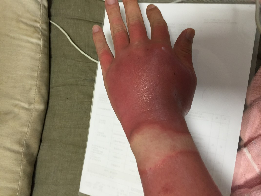 A severely sunburnt, swollen hand with a pale patch where the skin was protected by a watch.