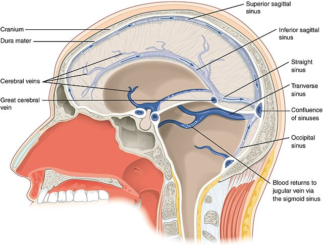 A diagram showing the sinuses that drain blood out of the brain