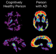 PET scan showing the brain of a cognitively healthy person and person with Alzheimer's disease.