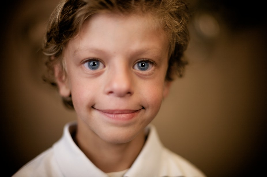 Explainer what is Williams syndrome