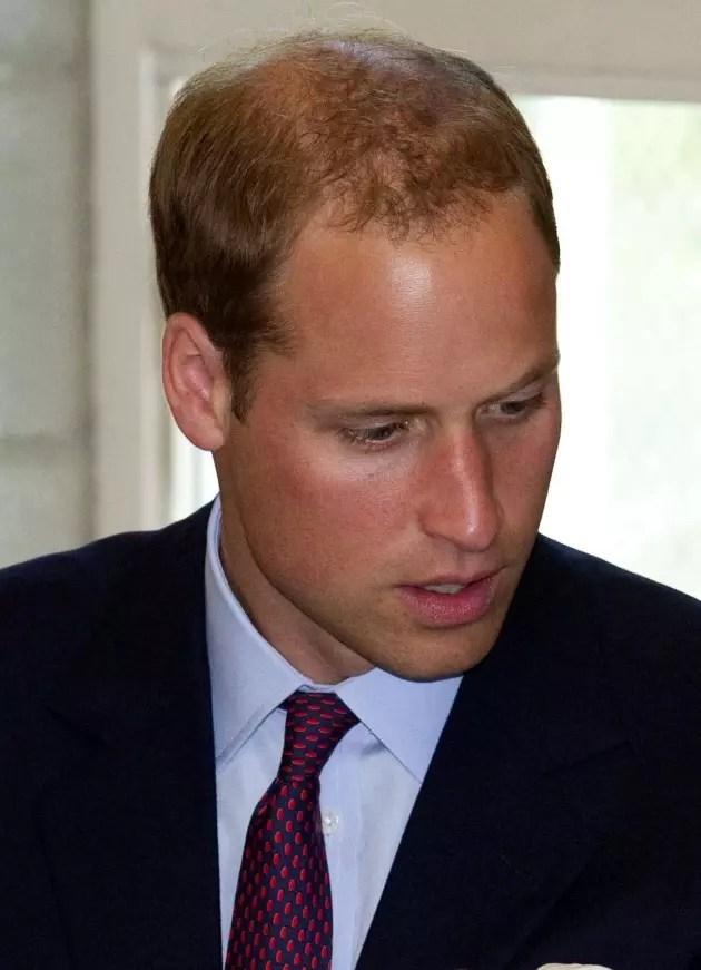Jennifer Aniston To Prince William Bald Is Beautiful