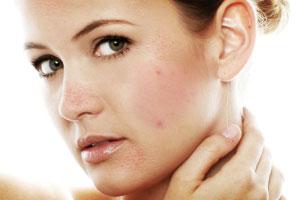 https://i1.wp.com/images.totalbeauty.com/uploads/editorial/lg/p-adult-acne-l.jpg