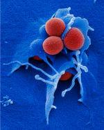 Das Bakterium Staphylococcus aureus (rot) bildet häufig Resistenzen gegen Antibiotika aus. Methicillinresistente Staphylococcus aureus-Stämme (MRSA) sind besonders für Patienten gefährlich, die bereits unter einer Infektion mit dem AIDS-Erreger HIV leiden.