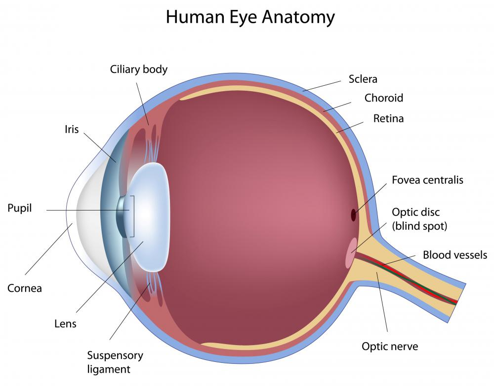 What are the Most Common Eye Defects? (with pictures)