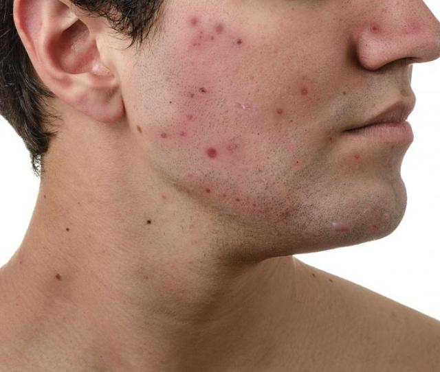 In Some Areas Acne Specialists Must Be Specially Licensed To Treat People With Skin Disorders