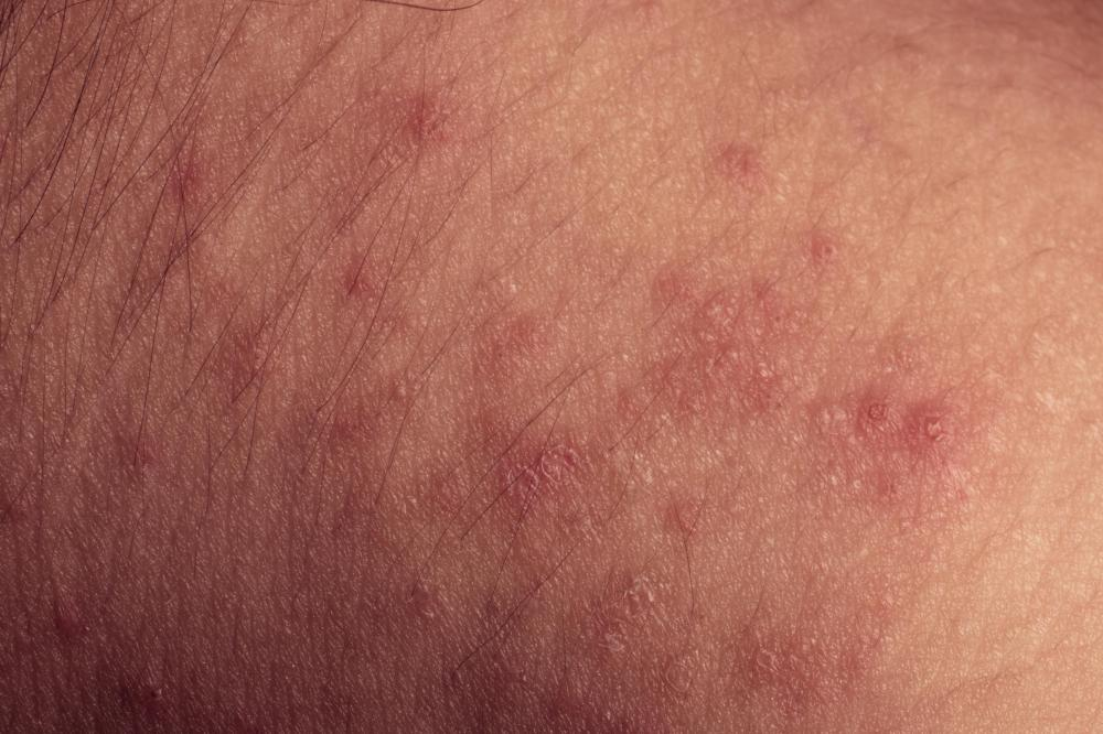 Image Result For How To Treat Allergic Reaction To Amoxicillin