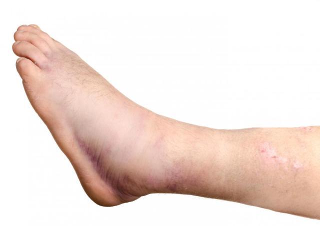 Image result for swollen legs