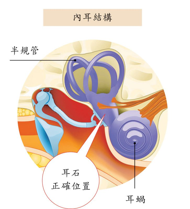 出現眩暈竟是耳石脫落導致 大紀元時報 香港 獨立敢言的良心媒體