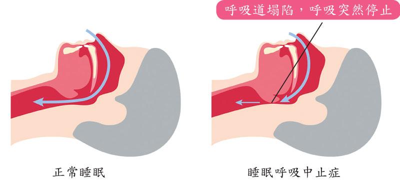睡眠呼吸中止癥會讓人一覺不醒? 避免憾事發生務必遵循3建議|大紀元時報 香港|獨立敢言的良心媒體