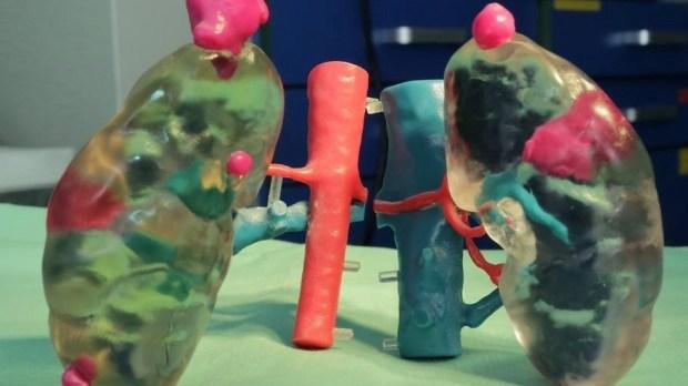 """Трехмерная модель почек больной с опухолями. Фото: пресс-служба """"Ихилов"""""""