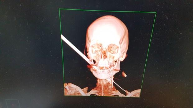 """Снимок головы Нетанэля с торчащей стрелой. Предоставлено пресс-службой больницы """"Кармель"""""""