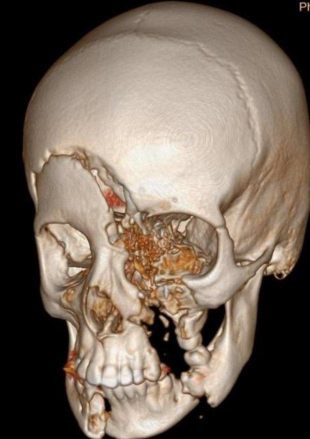 Трехмерный снимок повреждений, полученных мальчиком