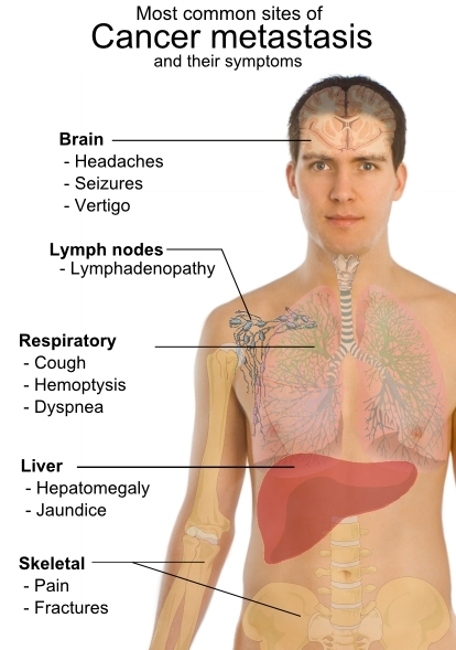 Permalink to Lung Cancer Signs And Symptoms