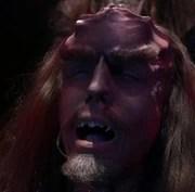 Klingon cranial ridges dissolve