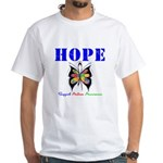 Autism HOPE White T-Shirt