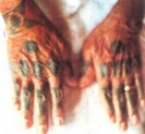 Hajichi tattoos on the back of women's hands were a sign of their status in the society
