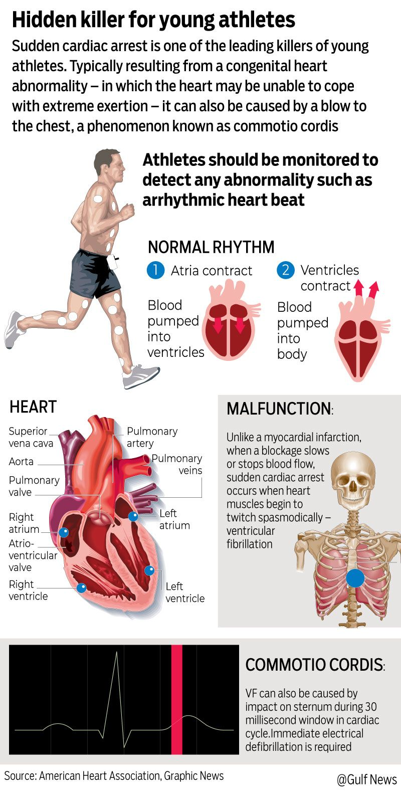 Graphic athletes heart attack