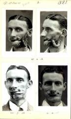 Gillies Patient File, Corporal W McRae