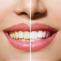 Sbiancamento dei denti, a casa o in ufficio del dentista?
