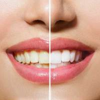 Teeth whitening, at home or in the dentist's Office?