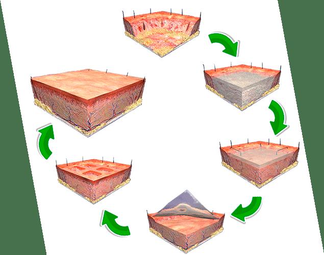 Tecnología de tejidos IM