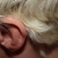 Why Is There a Popping Noise in One of My Ears? | eHow