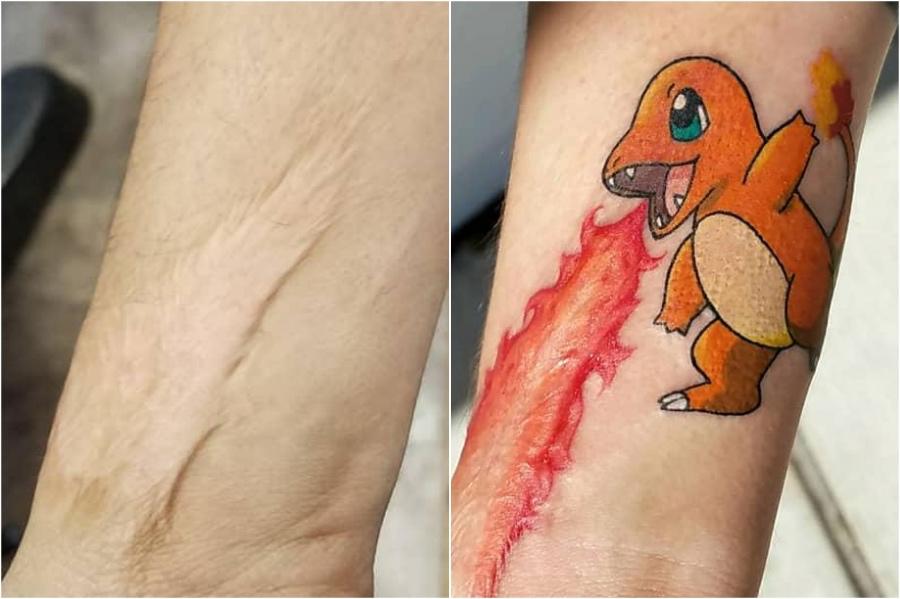 15 Creative Scar Tattoo Cover Ups #7 | Brain Berries