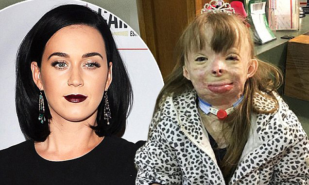 8 Year Old Burn Victim Gets A Christmas Surprise From Katy