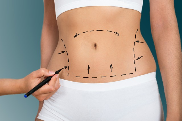 Board-certified plastic surgeon | Everything To Know About The Non Surgical Tummy Tuck | Her Beauty