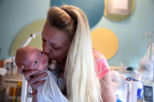 В штате Алабама родился ребенок без носа