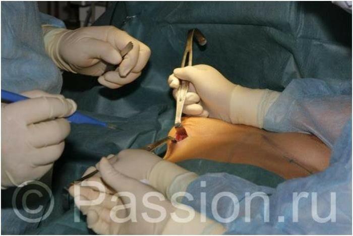 Увеличение груди: реалити репортаж (фотографии)