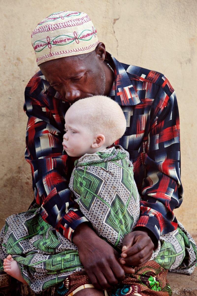 фото альбиносов африканцев рассказы водителей