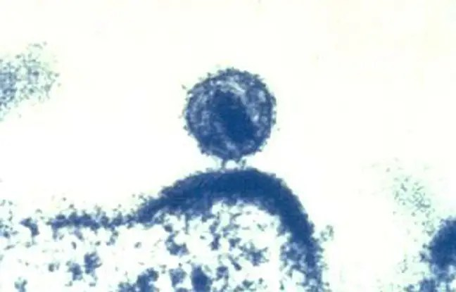 Le virus du sida infecte une cellule humaine.