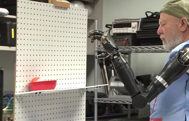 https://i1.wp.com/img.20mn.fr/YGh4EvWZRKyuo6uKQ5oPJg/648x415_leslie-baugh-ampute-voila-40-ans-utilise-deux-bras-bioniques.jpg