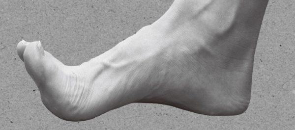 foot health