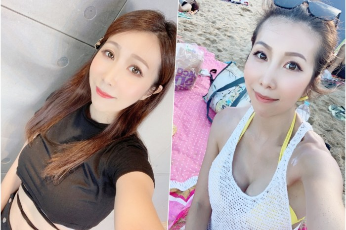 【醫美】台北聖宜診所 韓國Q+音波拉提 ♥ 一個月後我越活越年輕