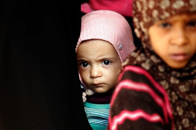 Des enfants yéménites dans un centre médical près de la capitale Sanaa, le 6 janvier 2018/AFP/Archives