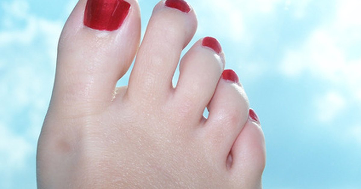 Itchy Toes Skin Between
