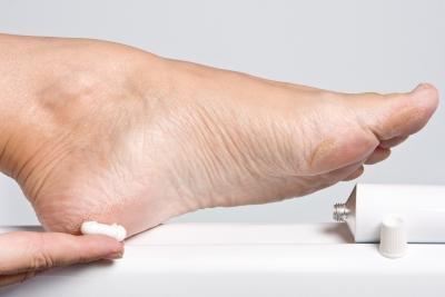 Corticoides para picores de pies