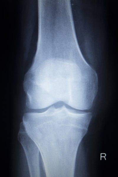 Tibial Plateau Fracture Rehabilitation