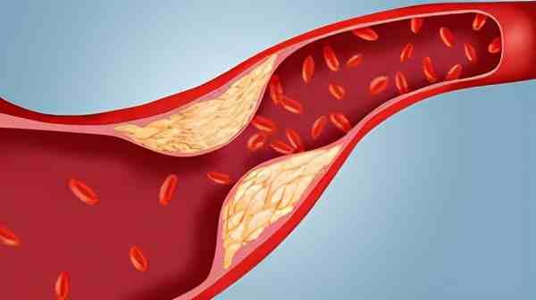 低密度脂蛋白胆固醇升高是什么原因,有什么危害?医生为您讲清楚
