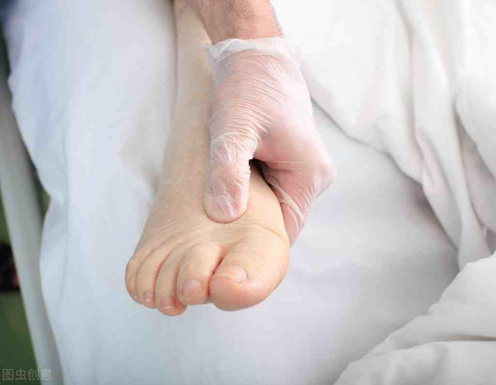关于尖锐湿疣的常见治疗方法