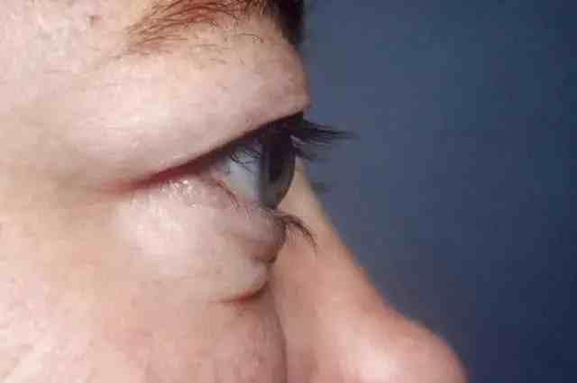 甲亢突眼5大典型症状,建议深入了解