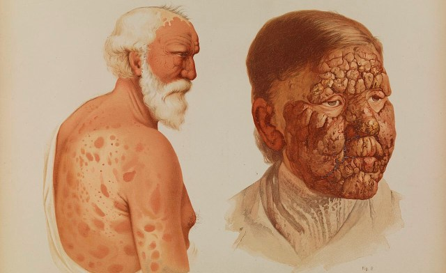 cómo se contagia la lepra