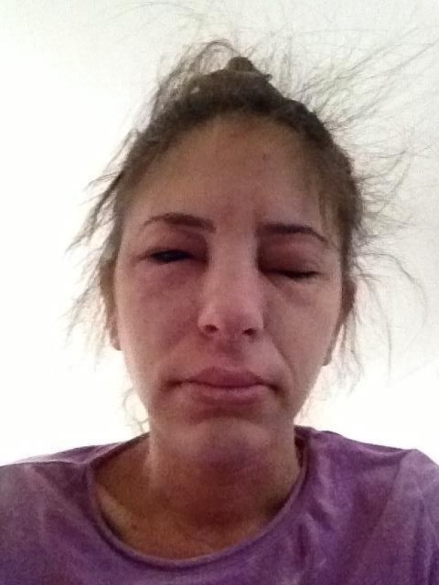 Diese Frau, die nicht mit ihrem Hund hätte kuscheln sollen: