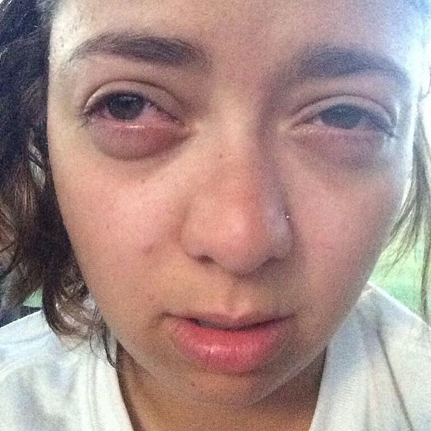 Dieses Mädchen mit ihrem Heuschnupfen-Gesicht: