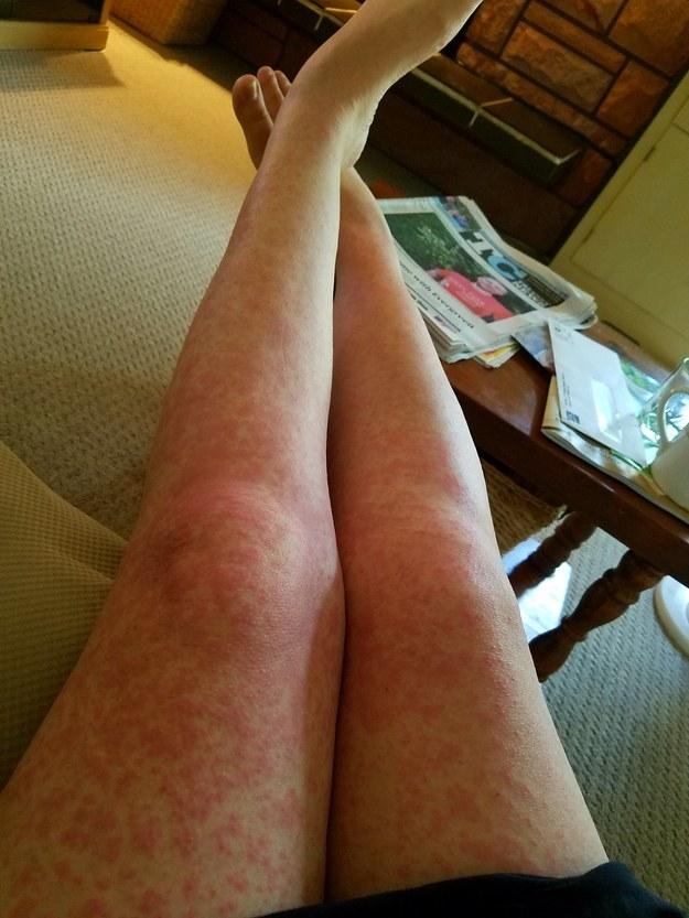 Diese Frau, die von falschen Antibiotika Ausschlag-Leggings bekam: